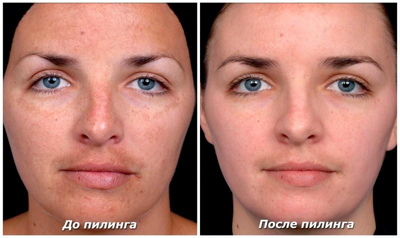 алмазный пилинг лица фото до и после