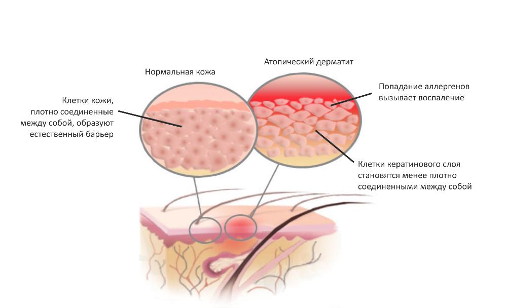 Нервы у ребенка с атопическим дерматитом
