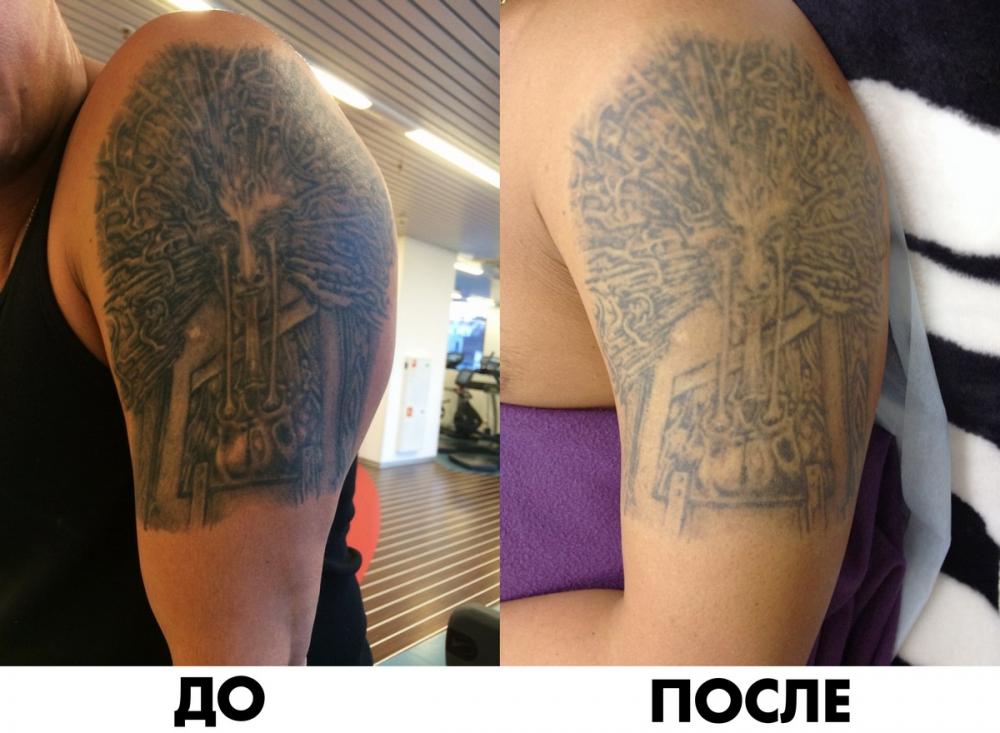 Фото до и после сведения татуировок