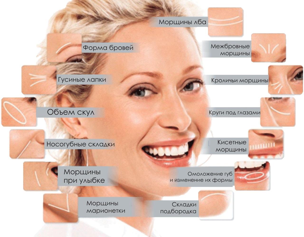 Классификация морщин