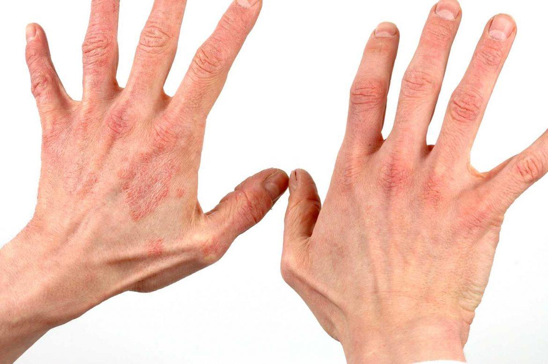 Красные точки на руках