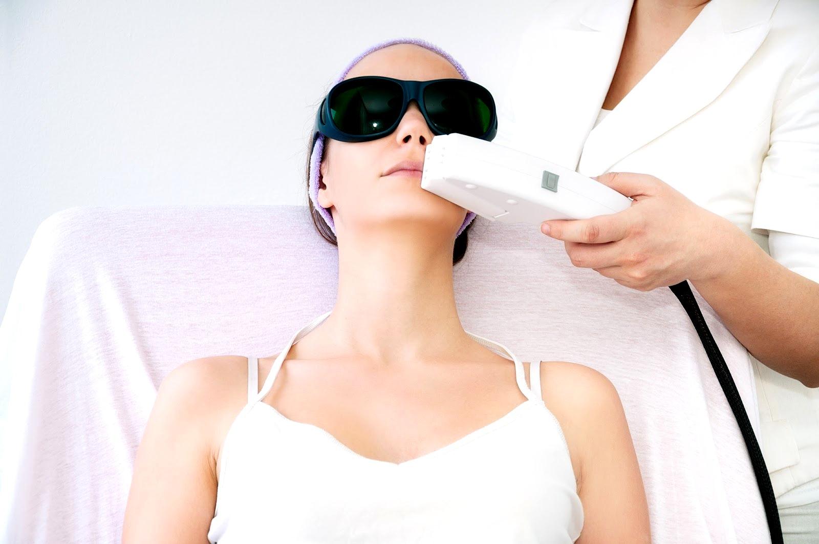 Проведение лазерной эпиляции верхней губы