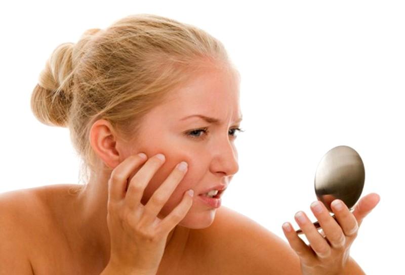 Угревая сыпь кожных покровов лица
