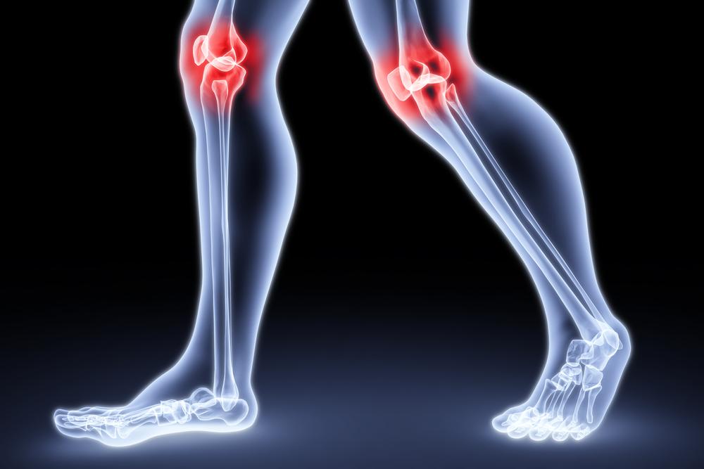 Жидкость в суставах колена