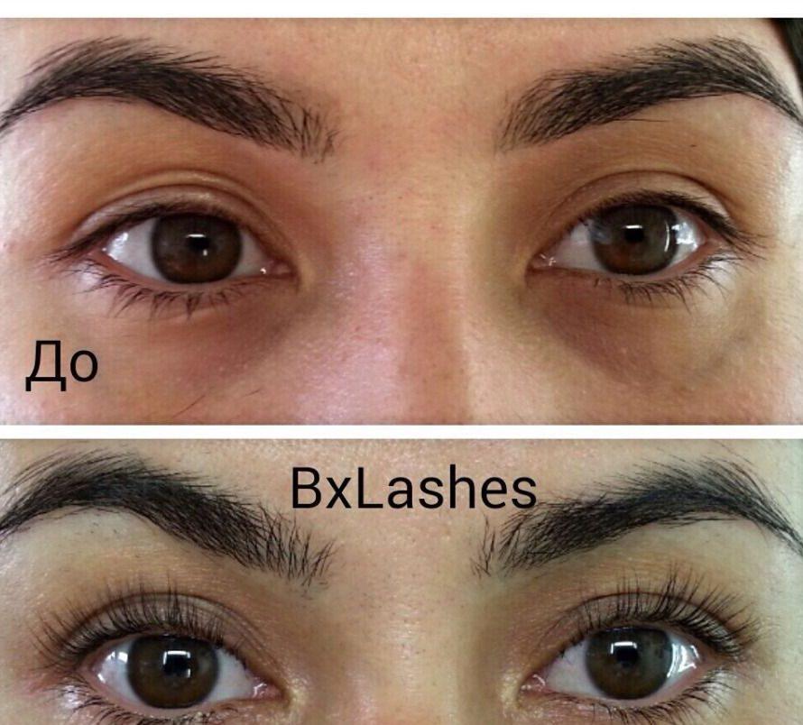 botox dlya resnic (4)