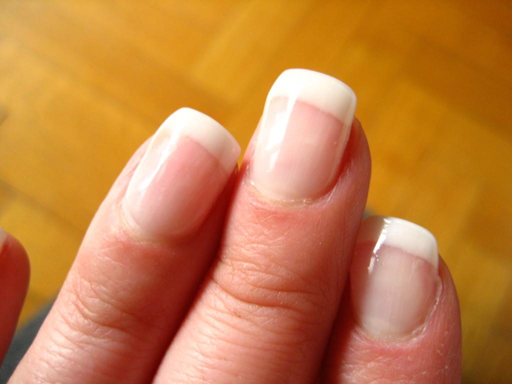 Кутикула на ногтях