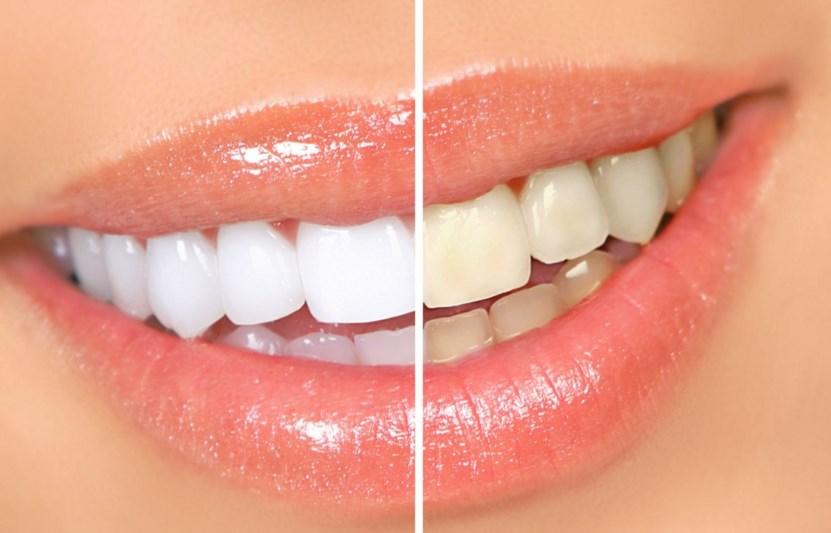 Отбеливание зубов с использованием геля
