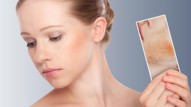 Проблемная кожа лица кто лечить