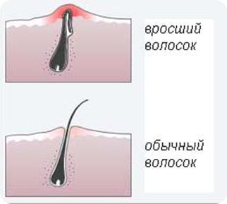 Как избавиться от вросших волос